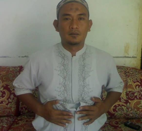 Gambar praktek quranic self healing dengan meletakkan tangan di lambung (stomach).