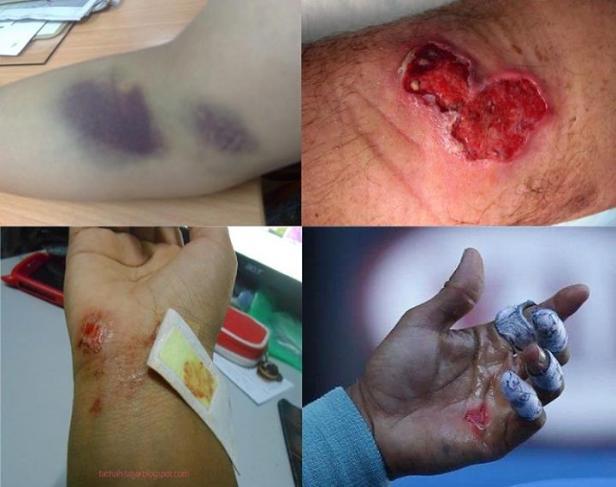 Jangan melakukan tehnik sentuhan langsung dibagian tubuh yang luka, lebam, borok, melepuh, sentuhlah dibagian terdekat tubuh (yang terluka) yang kulitnya tidak rusak selnya atau gunakan tehnik tiupan ruqyah saja.